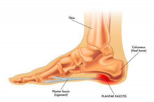 How to reduce plantar fasciitis, footwear advice and more!
